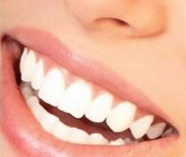 Новости Феодосии: Красивые зубы – признак культуры, здоровья, нормы.