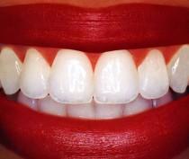 Новости Феодосии: Дырка в зубе